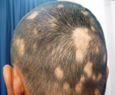 saç kıran